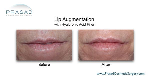 lip augmentation for aging lips before and after image