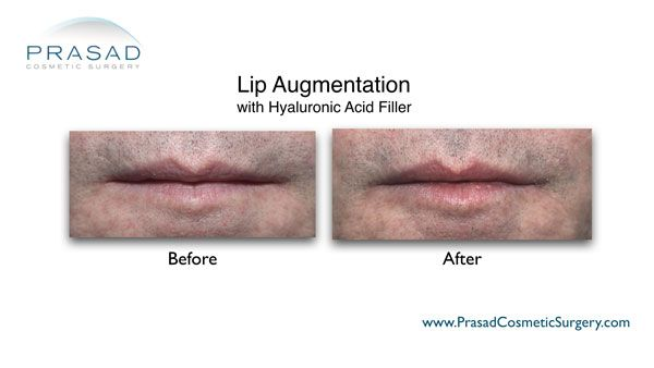 lip augmentation on male patient before and after photo