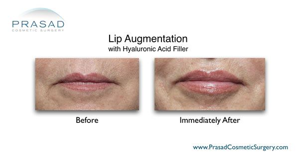 fillers for lip enhancement before and after photo
