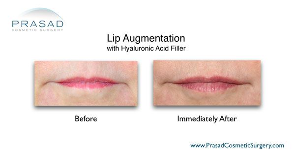 lip augmentation before and immediately after