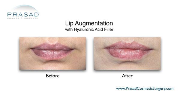 lip augmentation with filler before and after photo