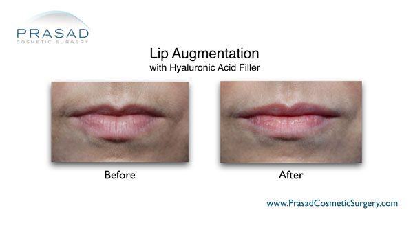 lip augmentation with HA filler