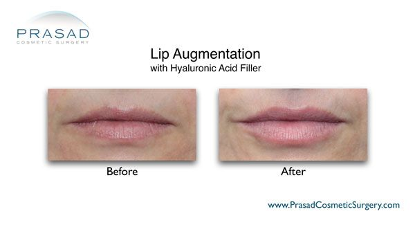 fillers for lip augmentation before and after photo