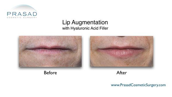 before and after lip enhancement with fillers