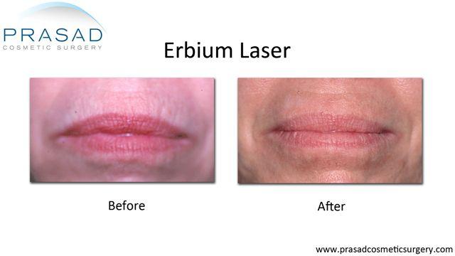 Vertical lip lines treated Amiya Prasad, MD