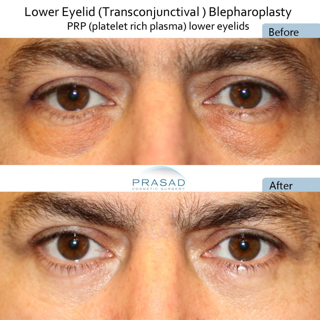 Transconjunctival blepharoplasty method to remove eye bags