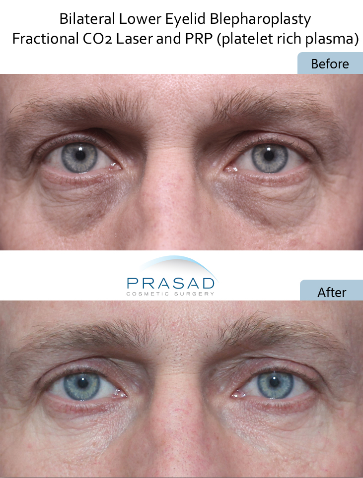 before and after Laser and PRP treatment combined for optimal results