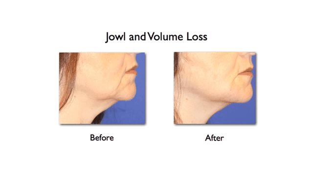 lower face enhancement of mandibular notch and mesolabial fold