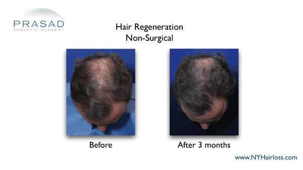 male pattern hairloss treated with hair restoration