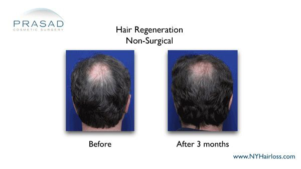 male pattern baldness solution 3 months after treatment