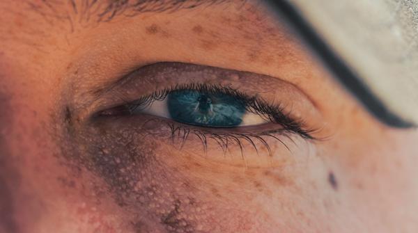 man with dark circles under eyes