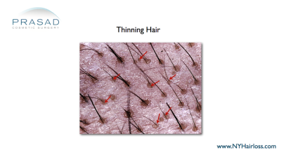 Hair thinning under microscope