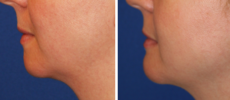Before and After Chin Implant