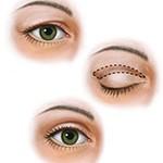 Eyelid Upper Bleph