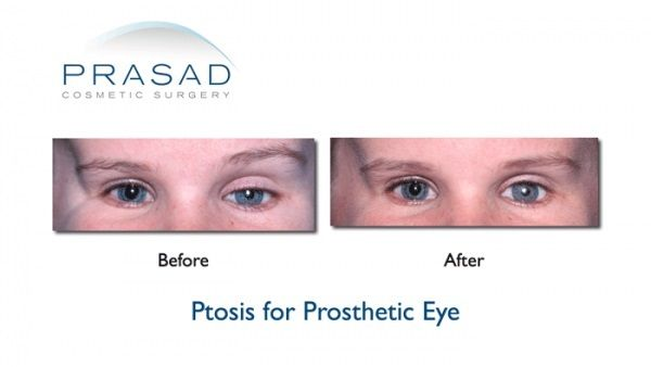 Ptosis For Prosthetic Eye Before And After Prasad