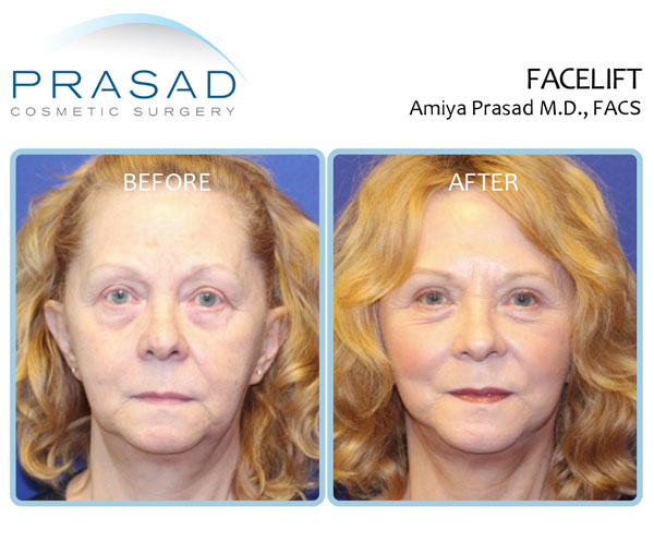 Full recovery after facelift surgery