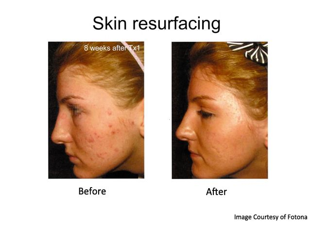 acne scars treated with lasers