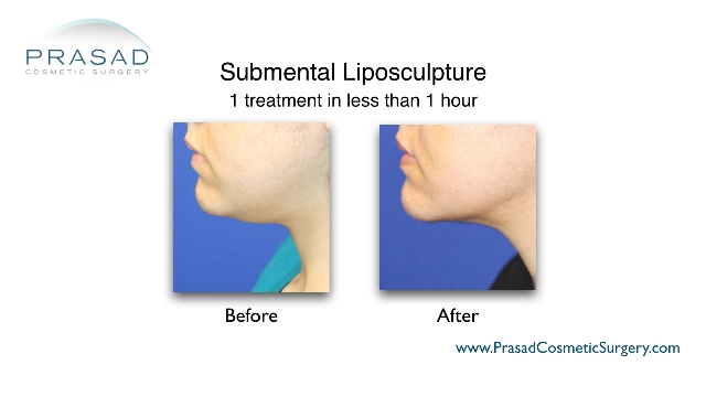 submental liposuction before and after performed by Dr Amiya Prasad