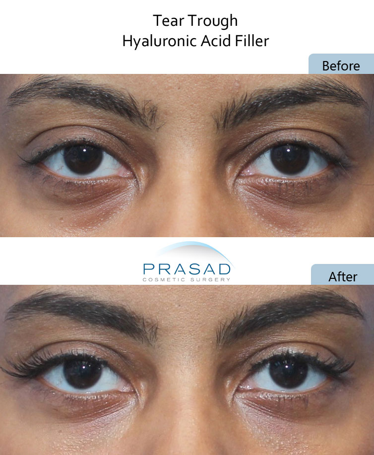 before and after dark under eyes circles treatment with PRP and Filler