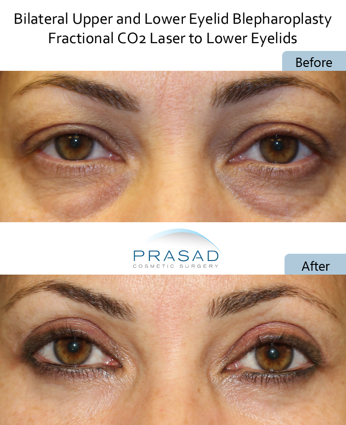 PRP and Laser combined to treat dark under eye circles