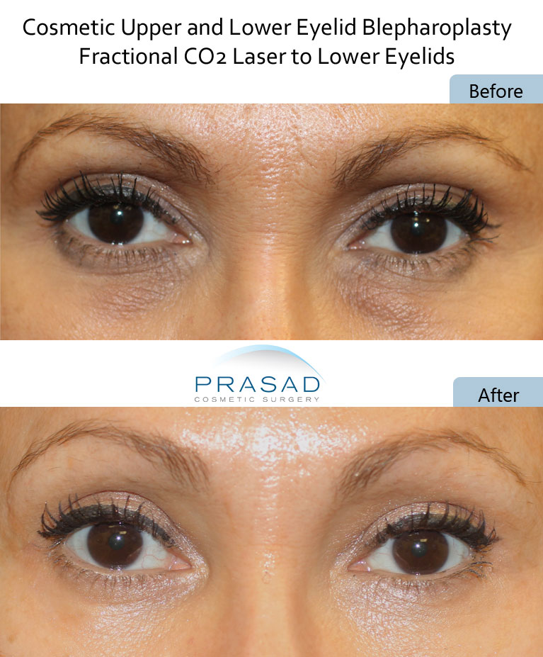 before and after dark circles undereyes treatment with CO2 Laser