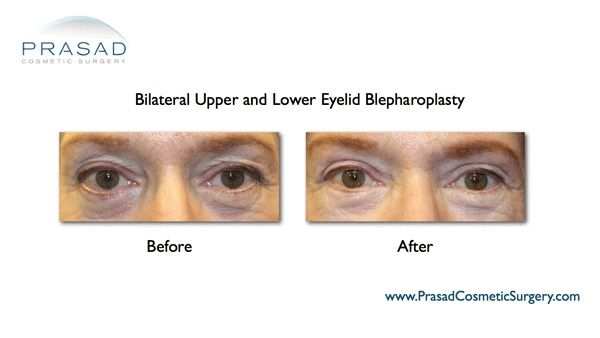 upper eyelid and Lower eyelid surgery