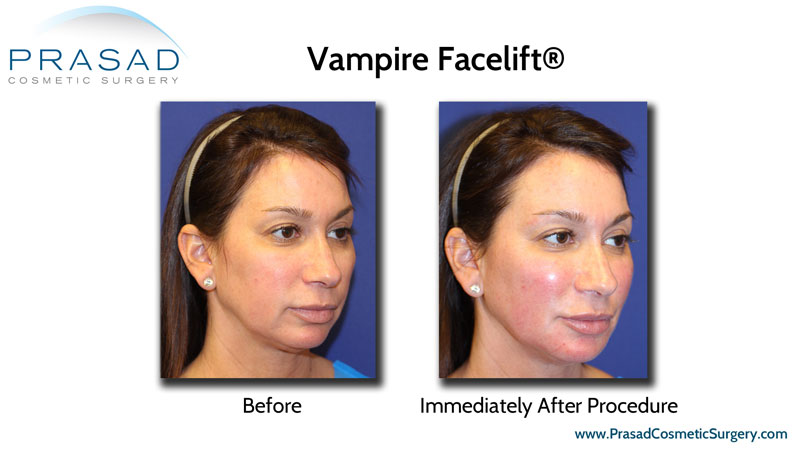 Vampire Facelift performed by Dr Amiya Prasad, before and immediately after results on female patient