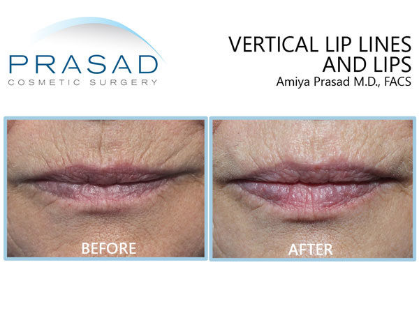 Vertical lip lines before and after fillers.