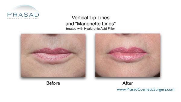 fillers for vertical lip lines and marionette lines