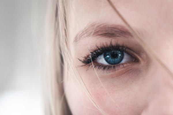 female model with dark circles under eyes causes